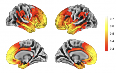What is the value of brain atrophy in frontotemporal dementia?
